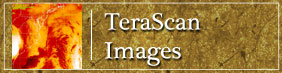 TeraScan Images